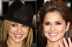 cheryl cole tooth capping