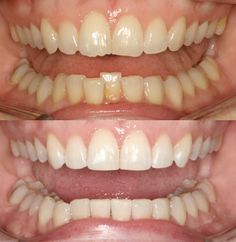 Invisalign Before and After Dr. Ginger Price Elite Invisalign Provider Ph (602) 468-1135