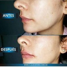 Claudia Toro MD | Estéticas, Medicina estética Bogotá Medicine, Lip Augmentation
