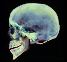 Окрашенная рентгенография сагиттальной проекции черепа.
