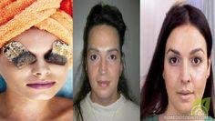 Las ojeras son las que están debajo de los ojos, unas manchas muy desagradables que se derivan de diversos factores entre ellos pueden s...