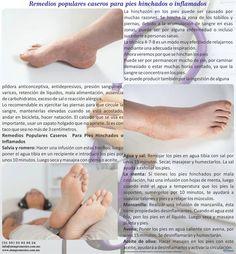 Remedios populares caseros para pies hinchados o inflamados