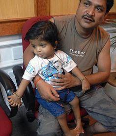 Incroyable !!! Ce jeune indien est né avec 34 doigts !!!