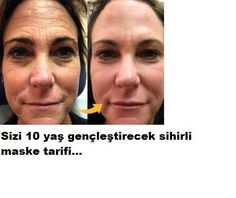 This is a MUST Try Turkish Recipe That Perfectly Reduces Even The Deepest Wrinkles Homemade Skin Care, Homemade Beauty, Best Anti Aging, Anti Aging Skin Care, Visage Plus Mince, Ride Du Lion, Beauty Care, Beauty Hacks, Double Menton