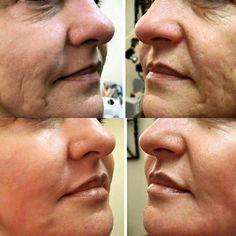 Results using Nerium  Www.lc2305.nerium.com
