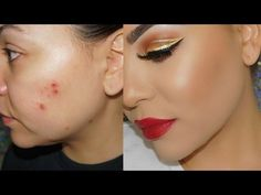 How to Cover Acne & Scars with Makeup ! Cystic Acne & Acne Scars ! - YouTube