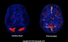 FIBROMYALGIA ORIGINS FOUND IN CENTRAL NERVOUS SYSTEM | Top Health Records