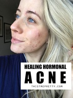 My Anti-Aging, Acne-Prone SKINCARE Routine! - Twist Me Pretty, to offer with pimples could make you truly feel as if you are battling a shedding combat. Highly-priced therapies and products that market qu. Cystic Acne Treatment, Back Acne Treatment, Natural Acne Treatment, Acne Treatments, Anti Aging, Skin Care Routine For Teens, Acne Prone Skin, Oily Skin, Skin Oil