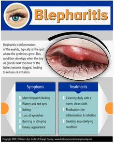 Children's Eye Center of Orange County provides treatment for blepharitis. Optometry School, Nursing Information, Eye Anatomy, Eye Facts, Medical Mnemonics, Family Nurse Practitioner, How To Grow Eyelashes, Human Anatomy And Physiology, Eyes Problems