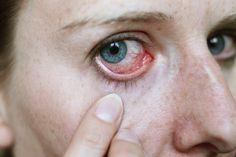 Les yeux rouges sont le produit de petits vaisseaux sanguins localisés à l'intérieur, qui s'agrandissent et se congestionnent à cause d'un apport insuffisant en oxygène à la cornée.