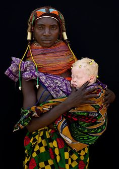Mother with her albino baby - Angola