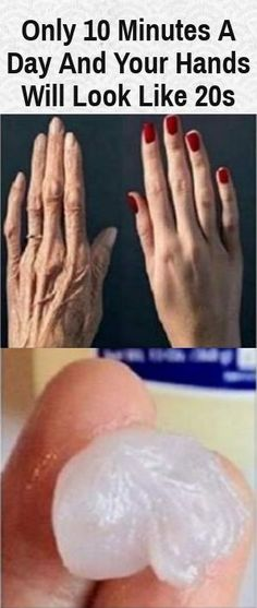 Only 10 Minutes A Day And Your Hands Will Look Like 20s