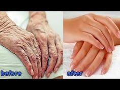 Nechajte svoje ruky vyzerať o 10 rokov mladšie - Odstráňte vrásky z rúk - Starostlivosť o pokožku - YouTube Dry Hands Remedy, Les Rides, Anti Aging Tips, Wrinkle Remover, Face And Body, Body Care, Helpful Hints, Hair Care, Beauty Hacks