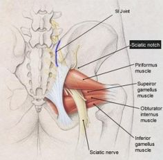 piriformis muscle impinges the sciatic nerve. the deep 6 hip muscles hamstring 'tear' trigger point Sciatica Symptoms, Sciatica Exercises, Sciatic Pain, Sciatic Nerve, Nerve Pain, Sciatica Yoga, Prenatal Massage, Muscle Anatomy, Thighs