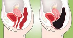 Colon Cleansing How To Remove Pounds Of Toxic Waste From Your. - How To Remove Pounds Of Toxic Waste From Your Colon (Colon Cleanse Smoothie) Homemade Colon Cleanse, Colon Cleanse Diet, Natural Colon Cleanse, Smoothie Cleanse, Body Cleanse, Body Detox, Cleanse Detox, Cleansing Smoothies, Hcg Diet