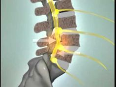 Spondylolisthesis - great video showing how the bones crack and shift, pinching the nerve. Looks painful ... and it is.