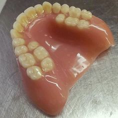 Extra teeth on a complete denture used for the treatment of cross-bites . These additional teeth will aid in the correction of a posterior cross bite to achieve proper occlusion while the teeth on the outside will be used for appearance. Thanks @batdentist. #ortho #dentures by dr.smile Our Dentures Page: http://www.myimagedental.com/services/general-dentistry/dentures/ Other General Dentistry services we offer: http://www.myimagedental.com/services/general-dentistry/ Google My Business…