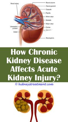 4 Unique Tricks Can Change Your Life: Different Types Of Chronic Kidney Disease polycystic kidney disease nejm.Phosphorus Kidney Disease diet for polycystic kidney disease patients.Diet For Polycystic Kidney Disease Patients. Stage 3 Kidney Disease, Kidney Dialysis, Kidney Disease Symptoms, Polycystic Kidney Disease, Kidney Detox, Kidney Cleanse, Kidney Recipes, Healthy Kidneys, Kidney Infection