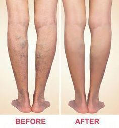 Varicose Vein Removal, Varicose Veins Treatment, Spider Vein Treatment, Radiofrequency Ablation, Holistic Approach To Health, Alternative Treatments, Health And Beauty, Compression Stockings, Home Remedies