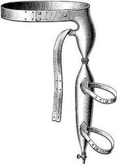 Equipements anti-masturbation pour hommes - Cette « trousse » brevetée en 1876 enveloppait le membre et était liée aux jambes, rendant toute rigidité impossible.
