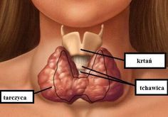 Published by Jan Chaboya-Hembree Graves' disease is an autoimmune disorder that leads to over activity of the thyroid gland (hyperthyroidism). Causes The thyroid gland is an important organ o… Thyroid Diet, Thyroid Gland, Thyroid Hormone, Thyroid Health, Iodine Deficiency Symptoms, Health And Wellness, Health Tips, Hair Loss, Metabolism