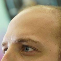 Wat kun je doen tegen kaalheid & haarverlies bij mannen?