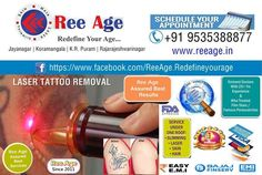 uddime media | LinkedIn Tattoo Removal, Appointments, How To Remove, Age, Treats, Sweet Like Candy, Goodies, Sweets