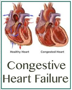 Learn all about Congestive heart failure, its causes, Symptoms and Treatment. Congestive heart failure is a disease characterized by the heart's inability to effectively pump blood throughout the body. What Is Heart Failure, Causes Of Heart Failure, Heart Failure Treatment, Edema Causes, Pitting Edema, Heart Valves, Pulmonary Fibrosis, Cardiac Nursing, Heart Muscle