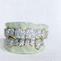 Opal Jewelry, Luxury Jewelry, Custom Jewelry, Gangsta Grillz, Custom Grillz, Diamond Grillz, Grills Teeth, Vanilla Bean Ice Cream, Gold Teeth