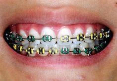 Color coordinating your braces (Duck colors!)