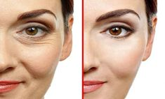Botox treatment is an incredibly common procedure. Here's how to make a natural Botox with only three ingredients! Read on: Anti Aging Skin Care, Natural Skin Care, Natural Health, Personal Beauty Routine, Pimples On Face, Younger Skin, Skin Care Cream, Eye Cream, Wrinkle Remover