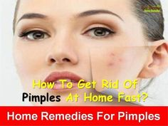 Pimples: 30 Natural Remedies To Get Rid Of Pimples Overnight Fast #FaceCareSerum #pimplesremovetips #ClearSkinInAWeek - #ClearSkinInAWeek #FaceCareSerum #FAST #Natural #Overnight #pimples #pimplesremovetips #Remedies #Rid #PimplesOnForehead How To Treat Pimples, How To Get Rid Of Pimples, Natural Remedies For Sunburn, Home Remedies For Pimples, Psoriasis Skin, Psoriasis Remedies, Inverse Psoriasis, Hair Remedies, Back Acne Treatment
