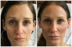 Sweet Cheeks! It Started as Marketing But Ended As Love: Restylane Lyft for Cheek Enhancement