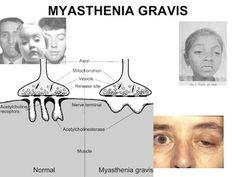 Dr Ajays Homeopathy  : Homeopathy Remedies for Myasthenia Gravis