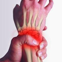 4 suplementos eficaces para aliviar las molestias del túnel carpiano, recuperando la movilidad de la mano y reduciendo el dolor