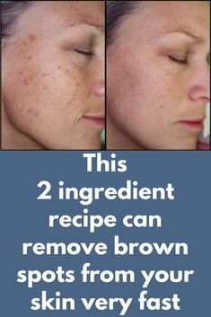 This 2 ingredient recipe can remove brown spots from your skin very fast Brown spots on the skin are also known as liver spot Brown Spots On Skin, Brown Spots On Face, Sun Spots On Skin, Liver Spots On Hands, Facial Brown Spots, Dark Patches On Skin, Beauty Skin, Health And Beauty, Skin Problems