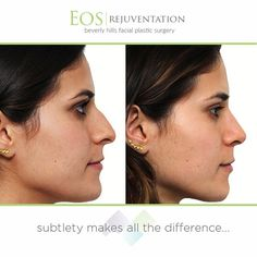 At #eosrejuvenation, Dr. Nima uses his artistic eye in achieving natural and subtle results. Tell us your thoughts on this before and after result! To schedule a consultation, call 310.736.1680
