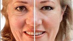 3 naturlige masker for å dempe dype rynker Mascara Tips, Best Mascara, Beauty Skin, Health And Beauty, Hair Beauty, Eyelash Enhancer, Eye Liner Tricks, Face Yoga, Les Rides