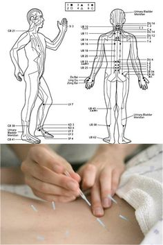 Acupuncture in lower back