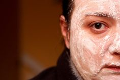 WARNING:  contents may scare... Types Of Acne, Contents