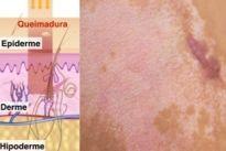 Como tratar a cicatriz de queimadura