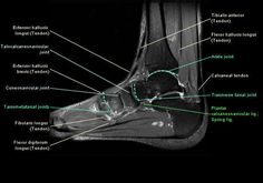 MRI ankle - Google Search