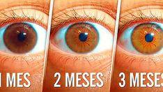 ¿Sabes lo que es una catarata? Esta dificulta la visión debido que provoca una sombra en la zona del cristalino del ojo, la cual puede empeorar