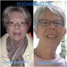 Had to share! This is my NANA!! My mom was looking through old pictures and found these and after putting them side by side - LOOK at the difference in her skin!  The before pic is with full make-up. The after pic is without!  She has been a faithful Rodan + Fields user since July, 2014. She started with Redefine and the Amp MD roller and now incorporates our Reverse regimen into her routine.  How about you?  Want to start your own journey to great skin?  Message or call me T