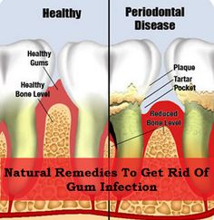 Awesome Home Remedies info are offered on our internet site. Read more about natural home remedies. Health And Beauty Tips, Health Tips, Health And Wellness, Homeopathic Remedies, Health Remedies, Dental Health, Oral Health, Natural Medicine, Herbal Medicine