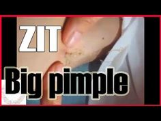 Pimple popping blackheads. Pimple and blackhead removal - All pimples & ...