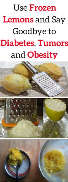 Believe It or Not, Use Frozen Lemons and Say Goodbye to Diabetes, Tumors, Obesity! - Solutions For Healthy Life Diabetes Remedies, Cure Diabetes, Health Remedies, Diabetes Recipes, Natural Cures, Natural Health, Natural Skin, Healthy Tips, Healthy Recipes