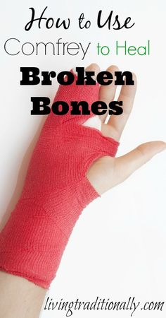 This is an awesome resource! This chick knows what's up!  How To Use Comfrey To Heal Broken Bones