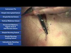 Duke Suture Skills Course - Learn Suture Techniques - YouTube. WOW!!! GREAT VIDEO!