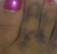 This is actually a YES. Paula Osuna Sees Jesus In Toe Bruise (PHOTO)